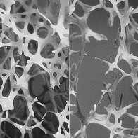 Bone_normal_and_degraded_micro_structure