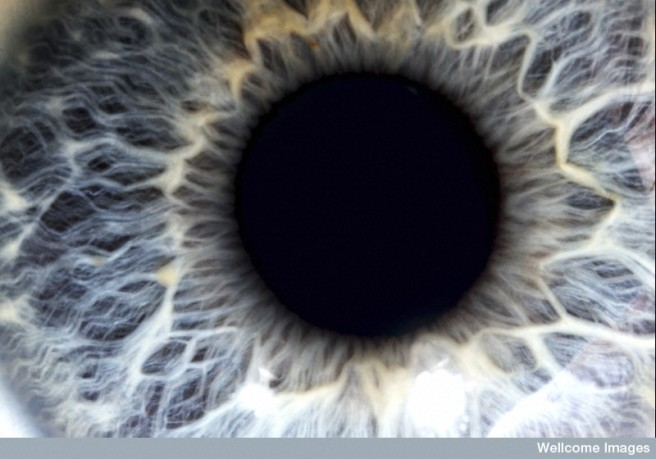 N0037850 Human eye with blue iris
